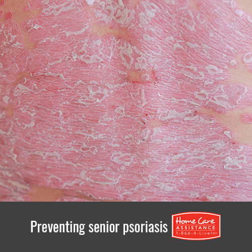 Helping Seniors Prevent Psoriasis in Anchorage, AK