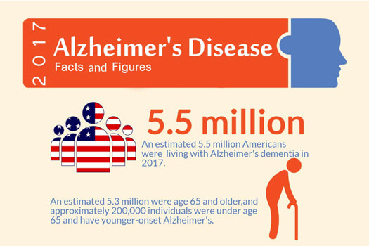 Alzheimers Infographic in Anchorage